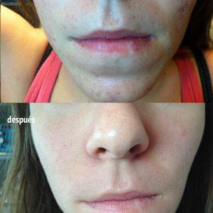 tratamiento de acné en la piel