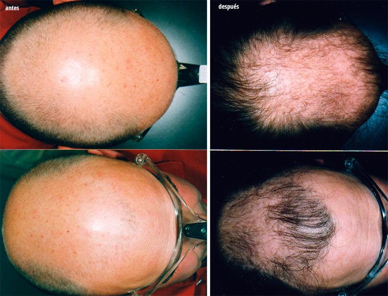 tratamiento especializado alopecia
