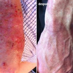 paciente afectado por dermatitis