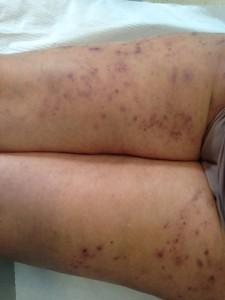 consecuencias picor piel