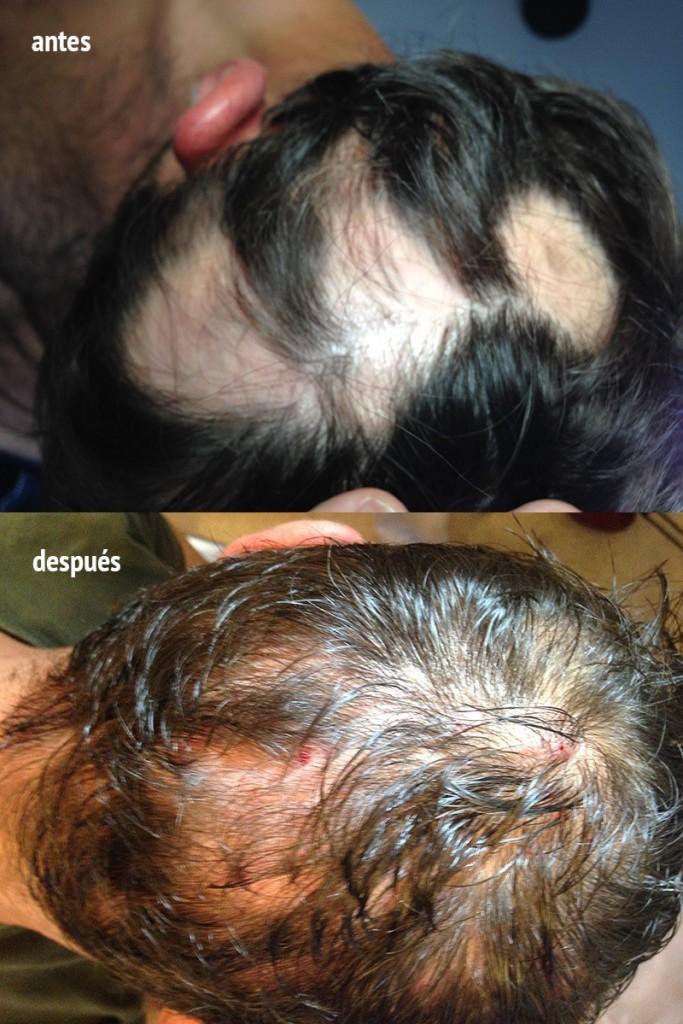 tratamiento alopecia