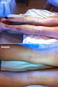 dermatitis atópica en piernas