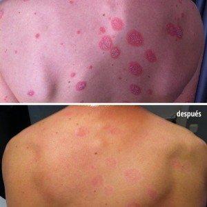 espalda con psoriasis