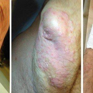 rodilla afectada psoriasis