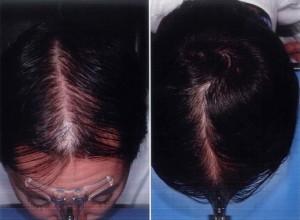 tratamiento alopecia resultados
