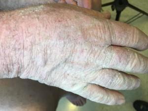 dermatitis en manos