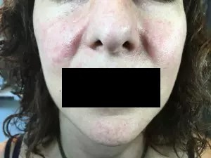 Tratamiento acné en Barcelona