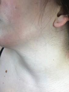 manchas piel cara