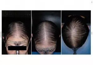 tratamiento alopecia antes